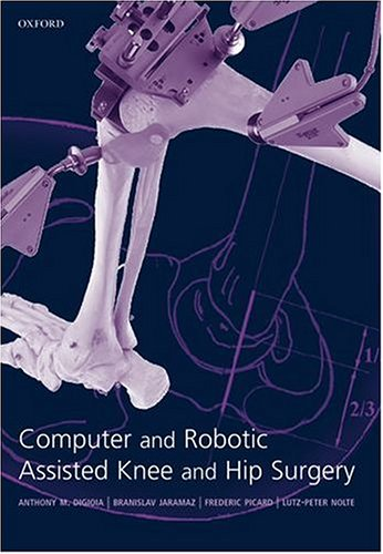 COMPUTER AND ROBOTIC ASSISTED HIP AND KNEE SURGERY