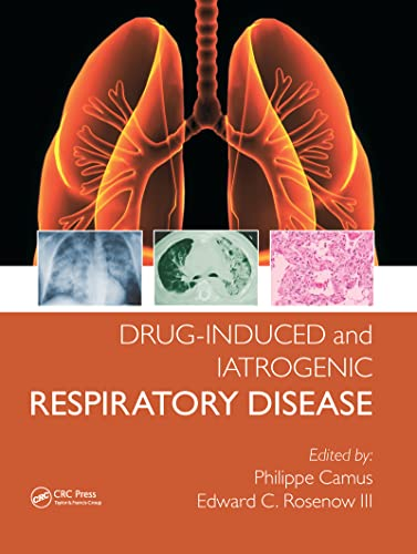 DRUG-INDUCED AND IATROGENIC RESPIRATORY DISEASE, 1ED