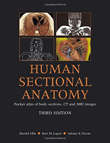 PDF Human Sectional Anatomy Atlas of Body Sections CT and MRI Images