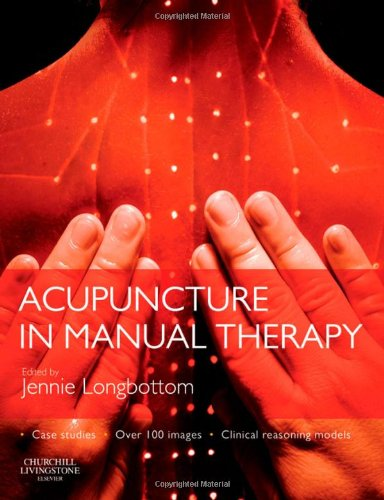 mechanism of acupuncture therapy and clinical case studies Pdf mechanism of acupuncture therapy and clinical case studies available link of pdf mechanism of acupuncture therapy and clinical case studies.