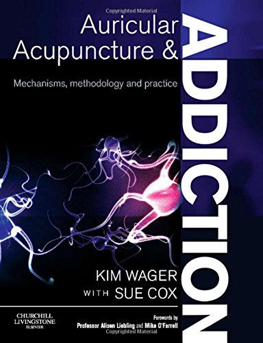 Books ebooks acupuncture and auriculotherapy libguides at auricular acupuncture and addiction mechanisms methodology and practice by kim wager fandeluxe Gallery