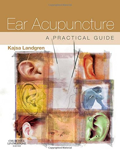 Books ebooks acupuncture and auriculotherapy libguides at ear acupuncture by kajsa landgren fandeluxe Gallery