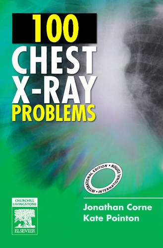 100 CHEST X-RAY PROBLEMS, (IE)