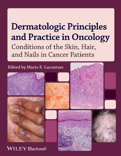 DERMATOLOGIC PRINCIPLES & PRACTICE IN ONCOLOGY, 1ED