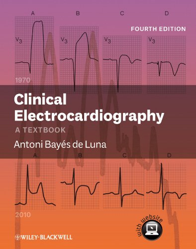 CLINICAL ELECTROCARDIOGRAPHY: A TEXTBOOK, 4ED