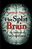 The Split Brain