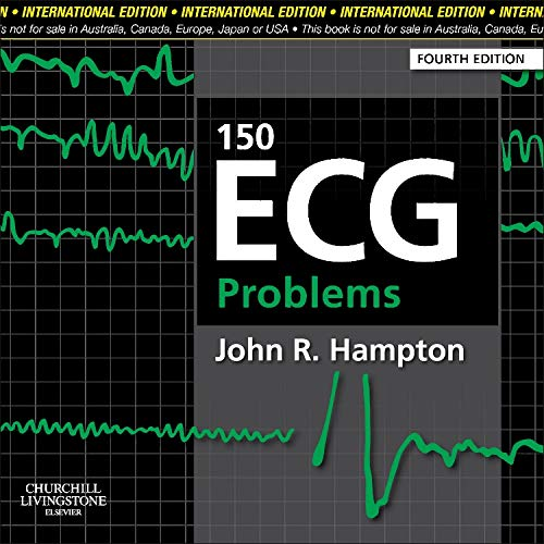 150 ECG PROBLEMS,4ED,(IE)**