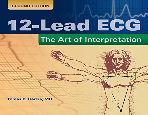 12-LEAD ECG: THE ART OF INTERPRETATION, 2ED