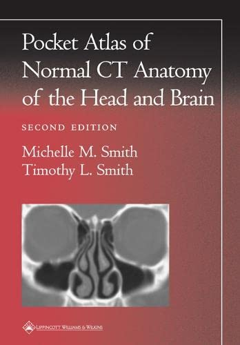 POCKET ATLAS OF NORMAL CT ANATOMY OF THE HEAD AND BRAIN (RADIOLOGY POCKET ATLAS SERIES), 2/ED.