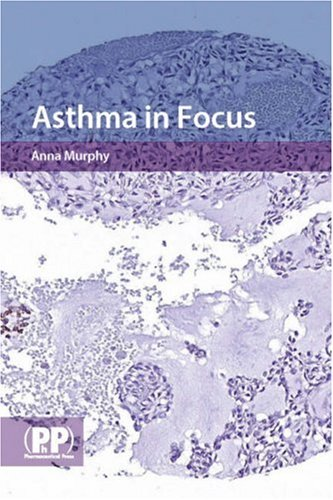 ASTHMA IN FOCUS