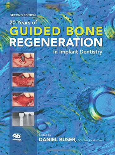 20 YEARS OF GUIDED BONE REGENERATION IN IMPLANT DENTISTRY, 2ED