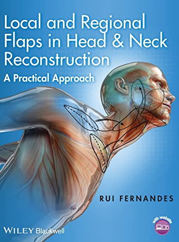 LOCAL AND REGIONAL FLAPS IN HEAD & NECK RECONSTRUCTION: A PRACTICAL APPROACH, 1ED.
