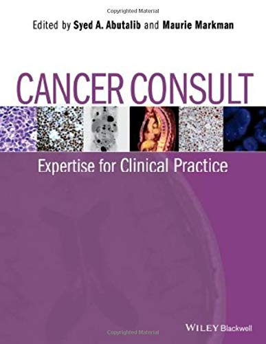 CANCER CONSULT EXPERTISE FOR CLINICAL PRACTICE, 1ED
