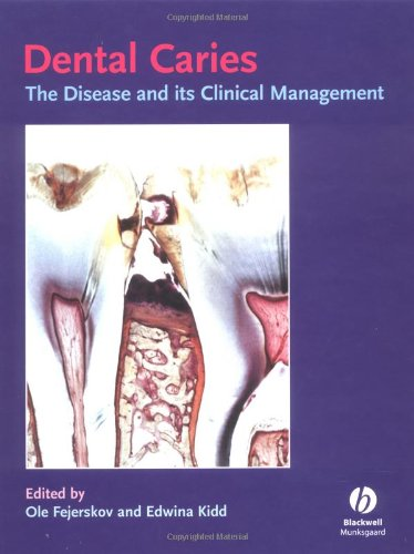 Dental Caries: The Disease and Its Clinical Management - Ole Fejerskoy, Edwina Kidd