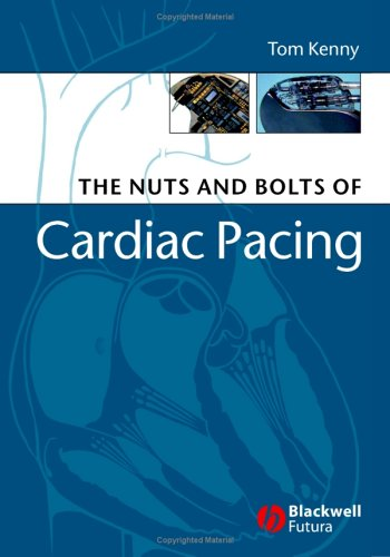PDF The Nuts and Bolts of Cardiac Pacing Nuts and Bolts Series