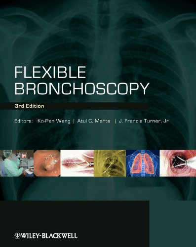 FLEXIBLE BRONCHOSCOPY, 3ED