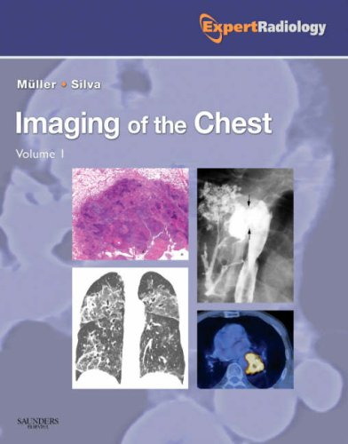 IMAGING OF THE CHEST, 2 VOLS SET (EXPERT RADIOLOGY SERIES)