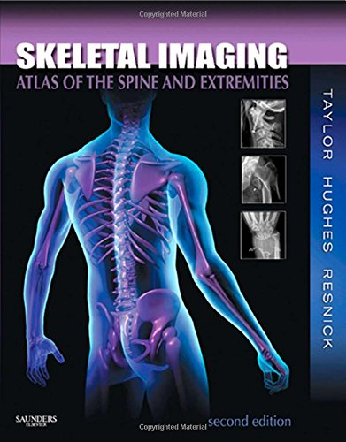 Skeletal Imaging: Atlas of the Spine and Extremities, 2e - John A. M. Taylor, Tudor H. Hughes, Donald Resnick