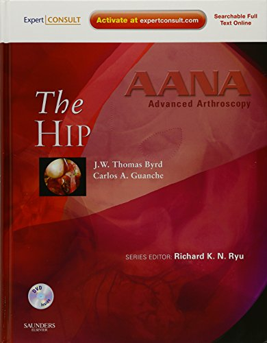 AANA ADVANCED ARTHROSCOPY: THE HIP, 1ED