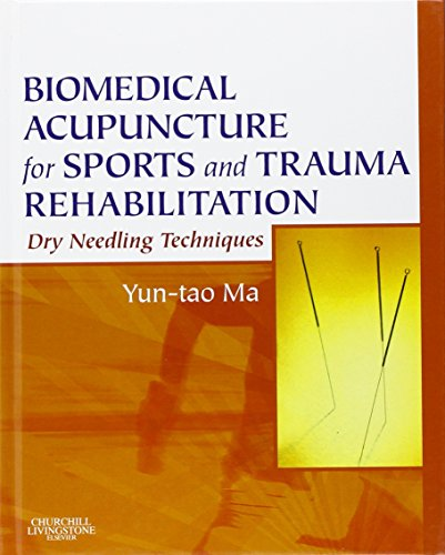 Books ebooks acupuncture and auriculotherapy libguides at acupuncture for sports and trauma rehabilitation dry needling techniques by yun tao ma fandeluxe Gallery