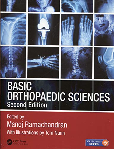 BASIC ORTHOPAEDIC SCIENCES, THE STANMORE GUIDE, 2ED