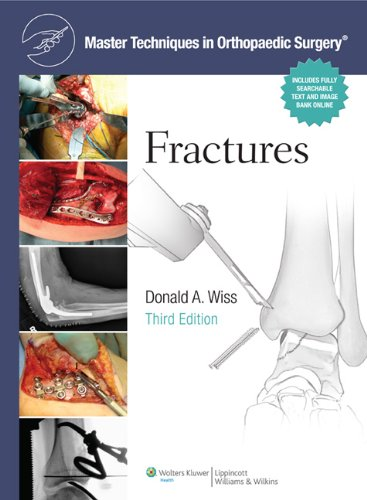 MASTER TECHNIQUES IN ORTHOPAEDIC SURGERY: FRACTURES, 3ED
