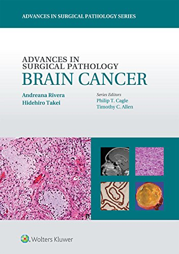ADVANCES IN SURGICAL PATHOLOGY BRAIN CANCER (PB)