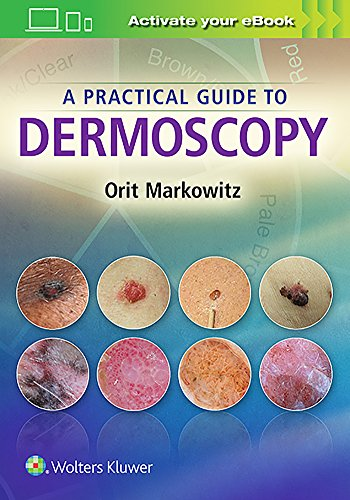 A PRACTICAL GUIDE TO DERMOSCOPY
