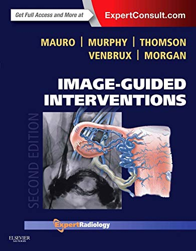 Image-guided interventions / Matthew A. Mauro [and 4 others].