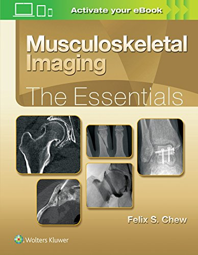 MUSCULOSKELETAL IMAGING: THE ESSENTIALS, 1/ED.