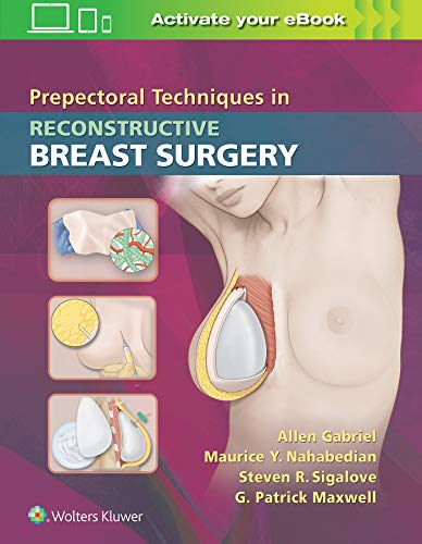 PREPECTORAL TECHNIQUES IN RECONSTRUCTIVE BREAST SURGERY, 1/ED.