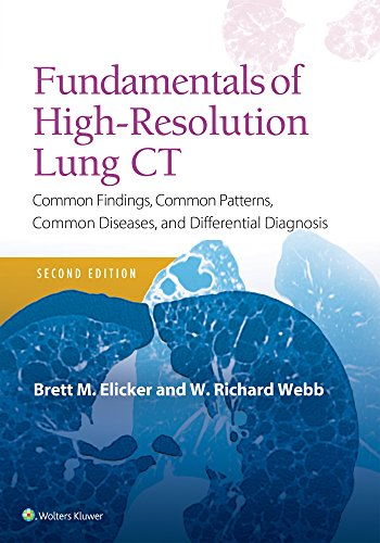 FUNDAMENTALS OF HIGH-RESOLUTION LUNG CT, 2/ED.