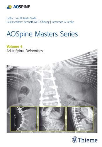 AOSPINE MASTERS SERIES, VOLUME 4: ADULT SPINAL DEFORMITIES 1ST ED.