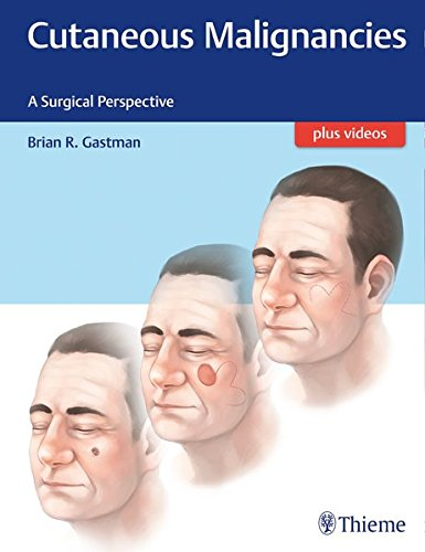 CUTANEOUS MALIGNANCIES A SURGICAL PERSPECTIVE -1E