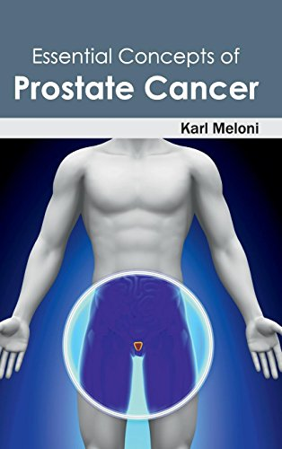 ESSENTIAL CONCEPTS OF PROSTATE CANCER, 1ED