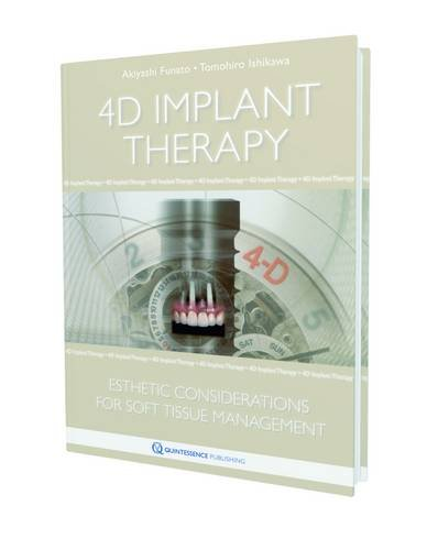 4D IMPLANT THERAPY ESTHETIC CONSIDERATIONS FOR SOFT TISSUE MANAGEMENT
