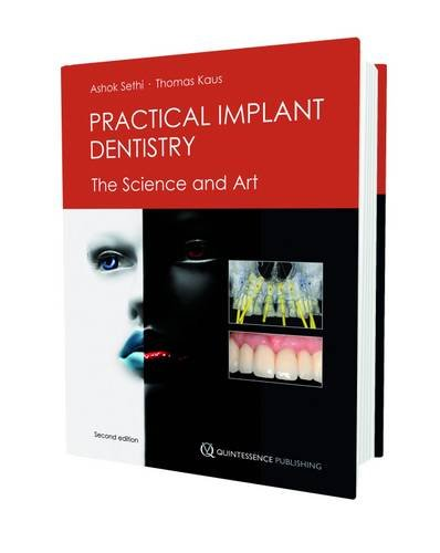 PDF Practical Implant Dentistry The Science and Art
