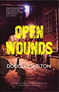 Open Wounds by Douglas Skelton