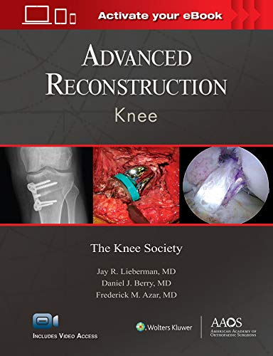ADVANCED RECONSTRUCTION: KNEE: PRINT + EBOOK WITH MULTIMEDIA (ADVANCED RECONSTRUCTION)