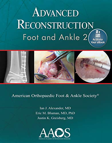 ADVANCED RECONSTRUCTION: FOOT AND ANKLE 2: PRINT + EBOOK WITH MULTIMEDIA (ADVANCED RECONSTRUCTION), 2/ED.