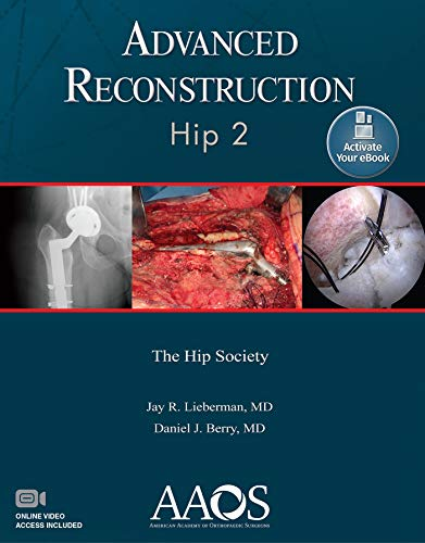 ADVANCED RECONSTRUCTION: HIP 2: PRINT + EBOOK WITH MULTIMEDIA (ADVANCED RECONSTRUCTION)