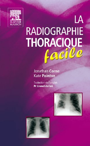 La radiographie thoracique facile
