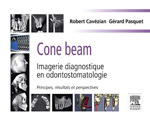 Cone beam - Imagerie diagnostique en odontostomatologie