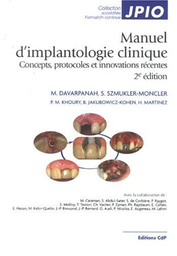 Manuel d'implantologie clinique : Concepts, protocoles et innovations récentes