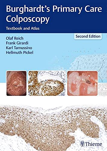 BURGHARDT S PRIMARY CARE COLPOSCOPY 2ND EDITION