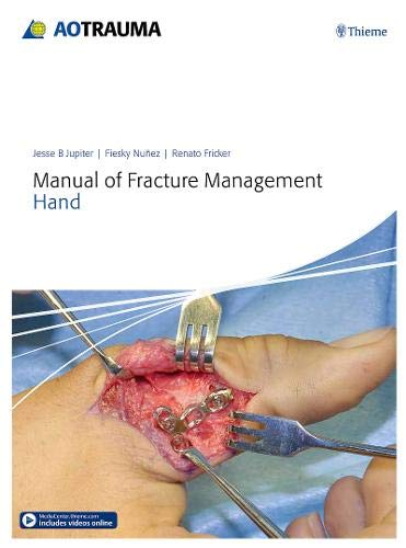 AO MANUAL OF FRACTURE MANAGEMENT - HAND 1ST EDITION