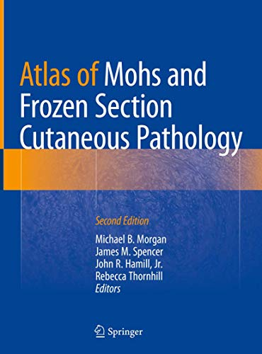 ATLAS OF MOHS AND FROZEN SECTION CUTANEOUS PATHOLOGY, 2/E (HB)