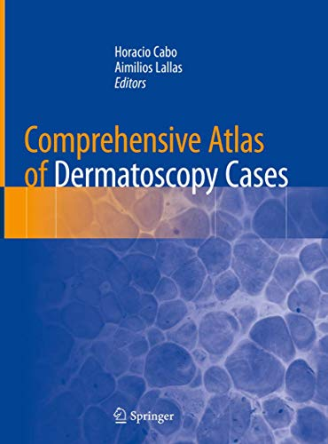 COMPREHENSIVE ATLAS OF DERMATOSCOPY CASES (HB)