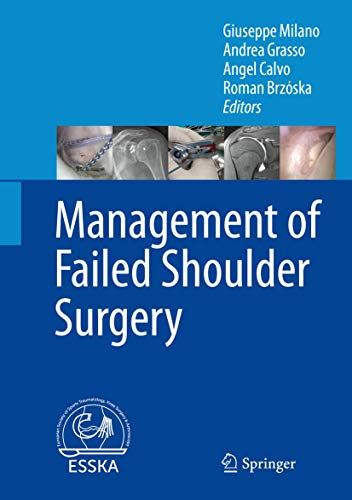 MANAGEMENT OF FAILED SHOULDER SURGERY (HB)