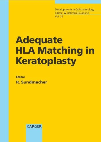ADEQUATE HLA MATCHING IN KERATOPLASTY